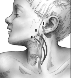Congenital neck masses
