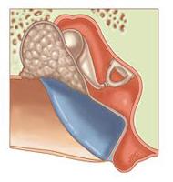 Colesteatoma