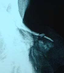 Frattura nasale