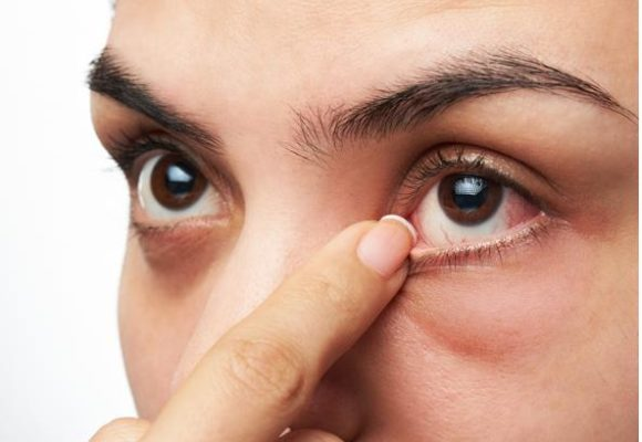Lacrimazione eccessiva – Dacriocistite