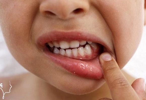 Aftosi del cavo orale