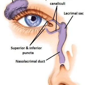 Epifora – La dacriocistorinostomia laser per correggere i disturbi della lacrimazione